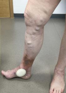 Varicose leg ulcer