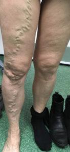 Varicose veins - anterior thigh