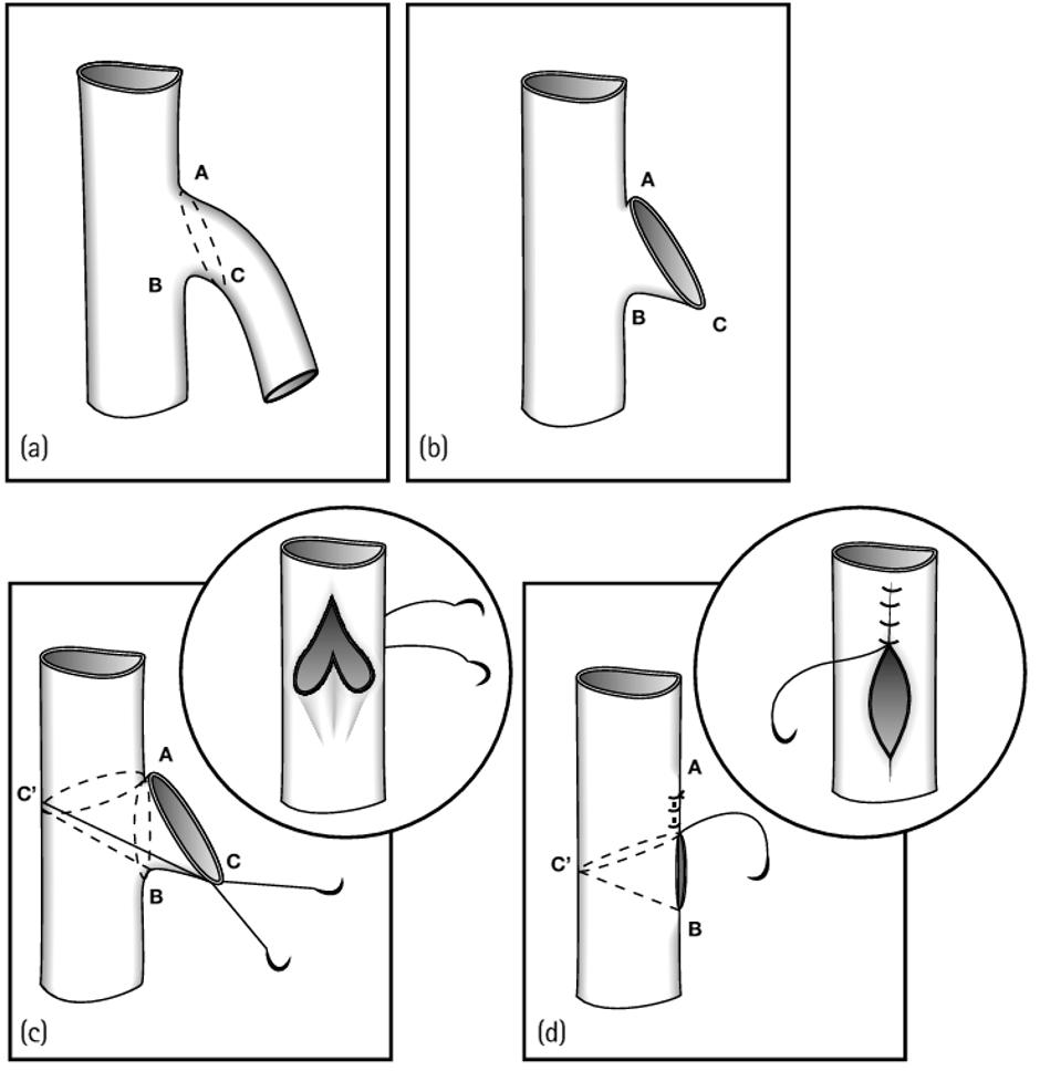 Neovalve Procedure